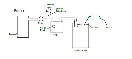 Nguyên lý hoạt động của máy hút dịch